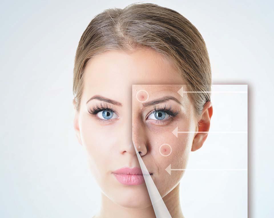 Marcas causadas por acne podem ser atenuadas em um mês
